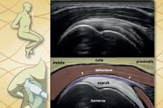 Ultrazvuk myoskeletální